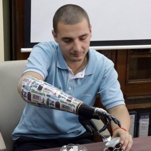 KCUS- Devetnaestogodišnjaku ugrađena proteza ruke kojom upravlja mislima (VIDEO)